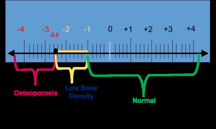 T-Score - Bone Density